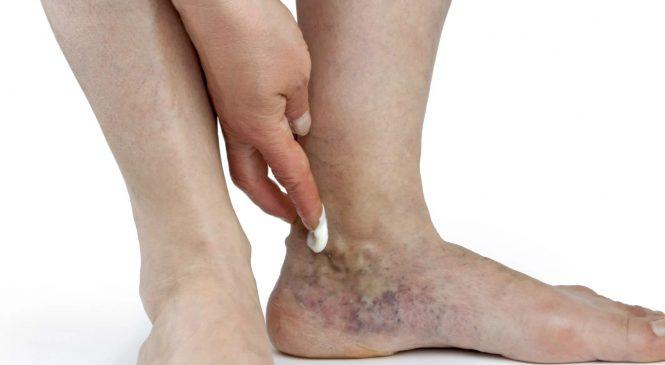 Аорто-бифеморальное шунтирование сосудов: мало инвазивное вмешательство