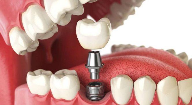 Установка зубных имплантатов: больно или нет